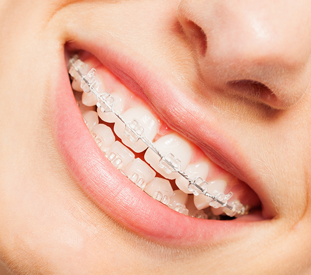 Chester Clear Braces