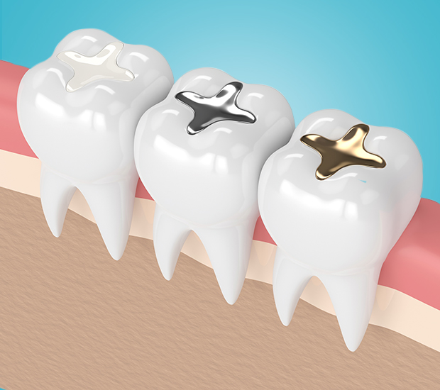 Chester Composite Fillings