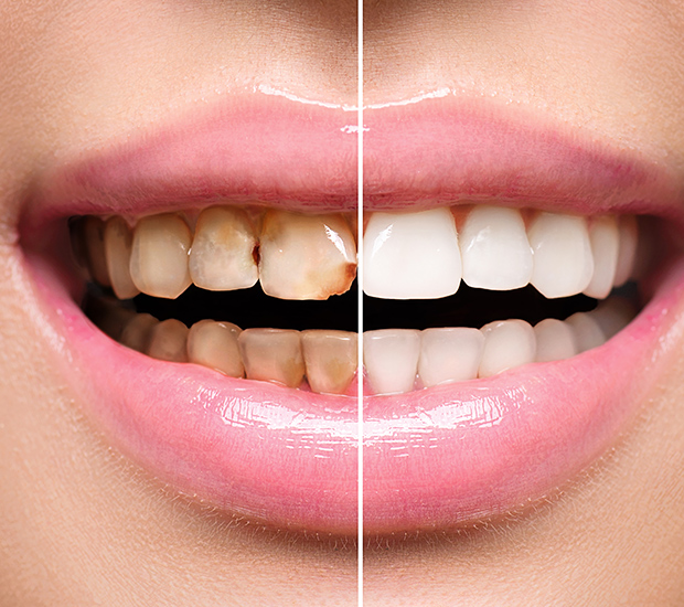 Chester Dental Implant Restoration