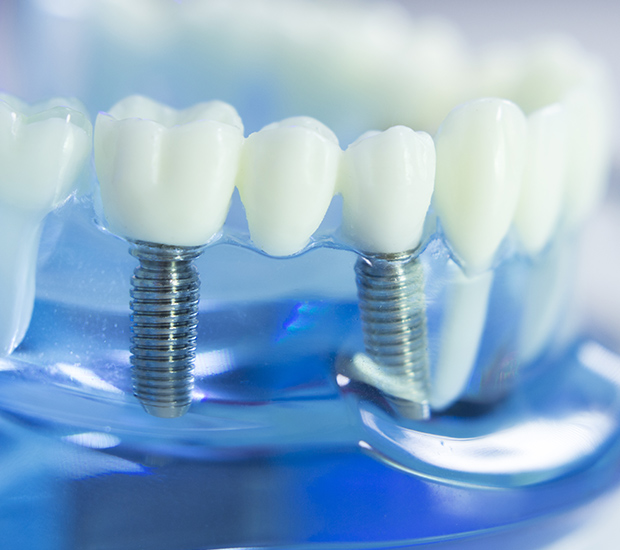 Chester Dental Implants