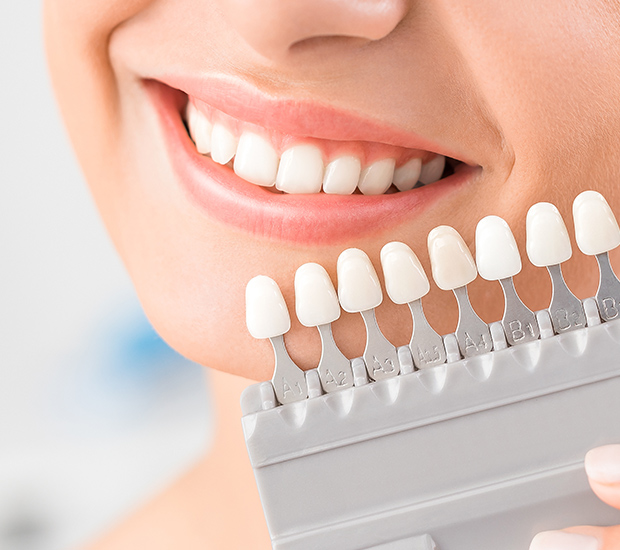 Chester Dental Veneers and Dental Laminates